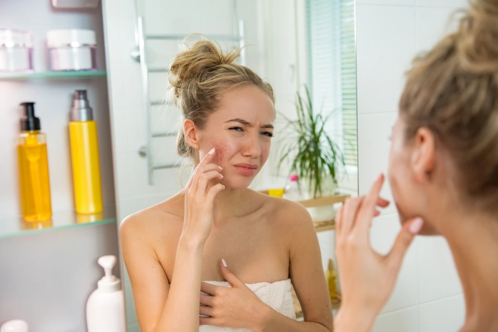Get Rid of Common Skin Imperfections
